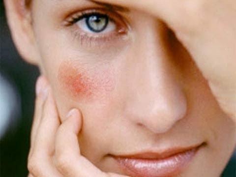 Пигментные пятна на лице после родов отзывы
