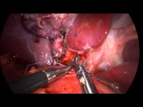 Laparoscopic Choledochal Cyst Excision with Hepaticoduodenostomy