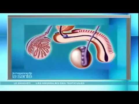 La sclérothérapeutique le prix à inférieur novgorode