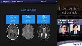 MRI Brain Sequences - radiology video tutorial