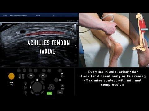 Mentő a csípőízület artrózisához