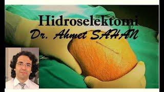 Hydrocelectomy - 123Vid