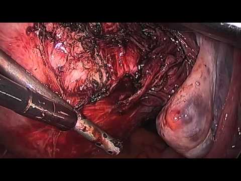 Laparoscopic Myomectomy of Broad Ligament Myoma