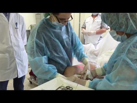 เส้นเลือดขอด telangiectasia sclerotherapy