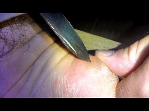 Prostatitis Änderungen im Blut