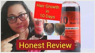 #10dayshairoil #Stophairfall  #SUBSCRIBE 10 Days Hair Oil - 10 दिनों में अपने नऎ बालों को उगाओ 😳