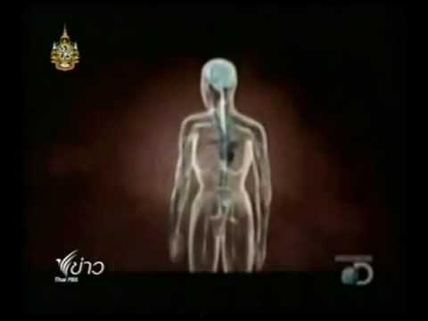 Homeopaths ของ Giardia