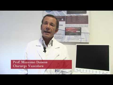 Cancro a thrombophlebitis