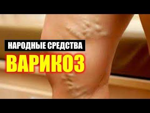 ✅Как Лечить Судороги на Ногах при Варикозе Народными Средствами. Лечение и Профилактика Варикоза