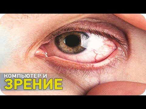Лазерная коррекция зрения бесплатно в уфе