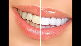 How To Mix Baking Soda And Lemon For Teeth Whitening Free Online