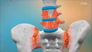 Rheuma - Heute Morbus Bechterew / Spondylitis ankylosans