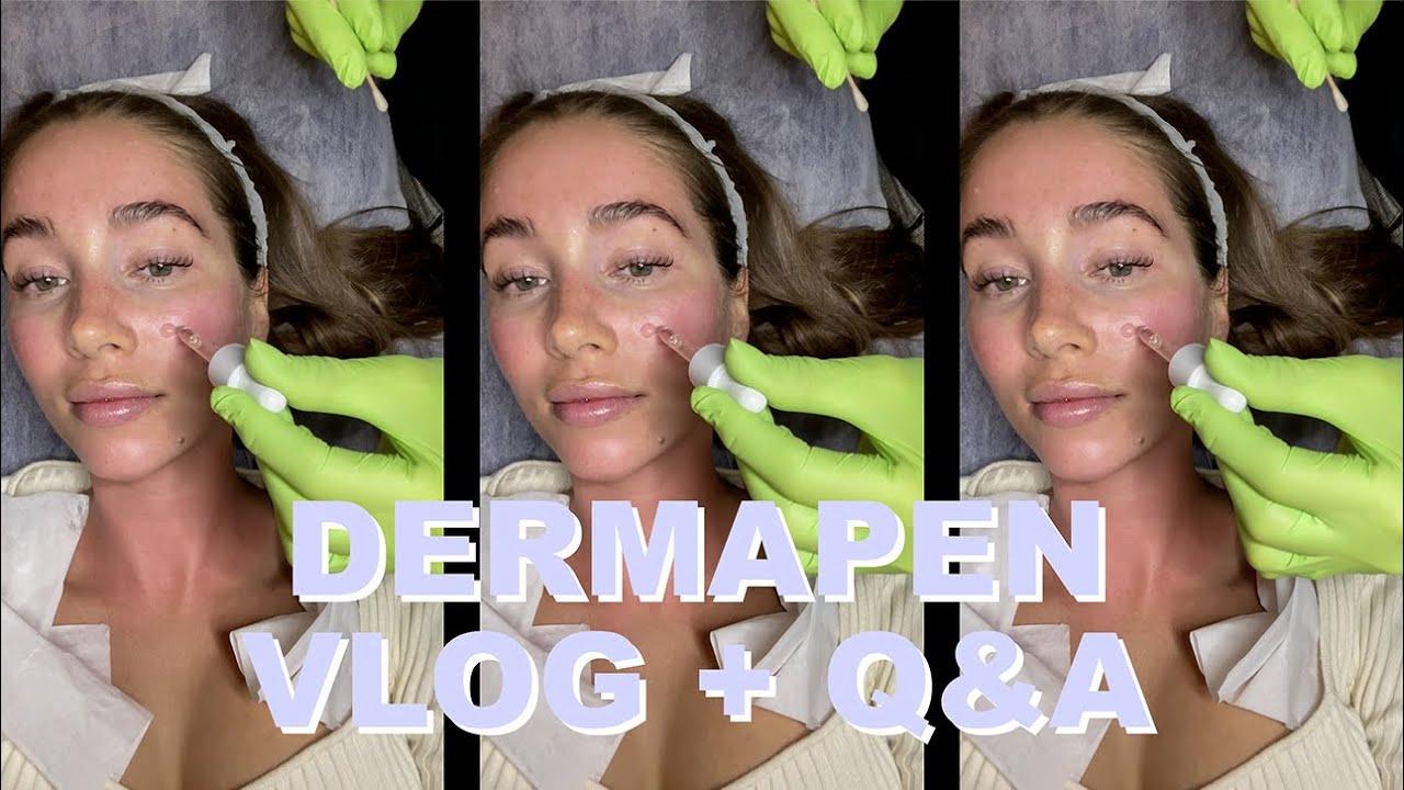 DERMAPEN | Vlog + Q&A