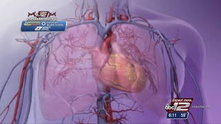 VIDEO: Why heart health is so important for women?