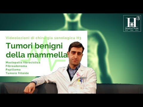 Guarda massaggio prostatico medico