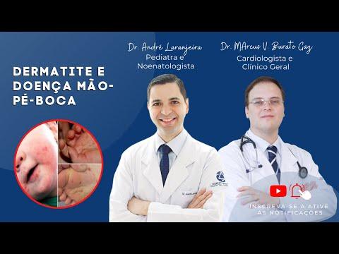 Como tratar o eczema vascular