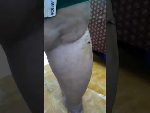 Video 081381827768, CARA MENGOBATI VARISES, CARA MENGHILANGKAN VARISES