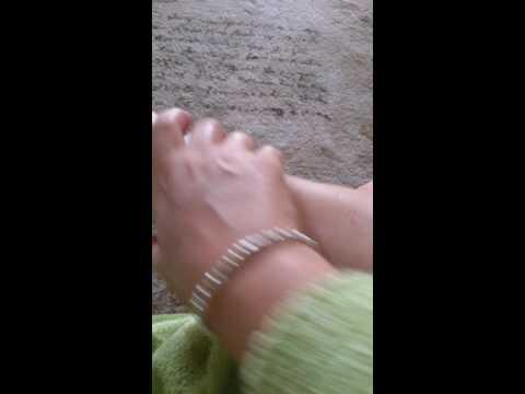 Massaggio di stinchi di valgus