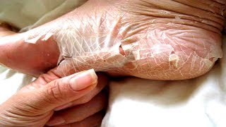 How To Treat Peeling Skin On Feet