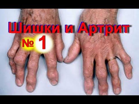 Шишки на пальцах рук- как избавиться от шишек на пальце - № 1 | Артрит суставов на руках | #edblack