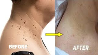 JUST 3 DAYS REMOVE SKIN TAG SKIN WART AND MOLES FAST