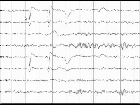 Hipertenzija galvos svaigimas angina