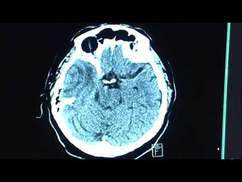 Behandlung von portale Hypertension bei Patienten mit Leberzirrhose