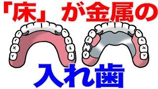 金属製の入れ歯?