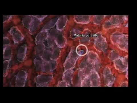 Parazita gyógyszer gyermekeknek és felnőtteknek