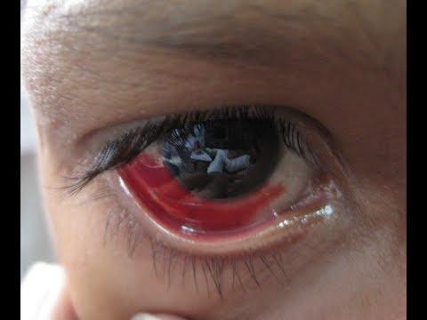 Gepatrombin g les sacs sous les yeux