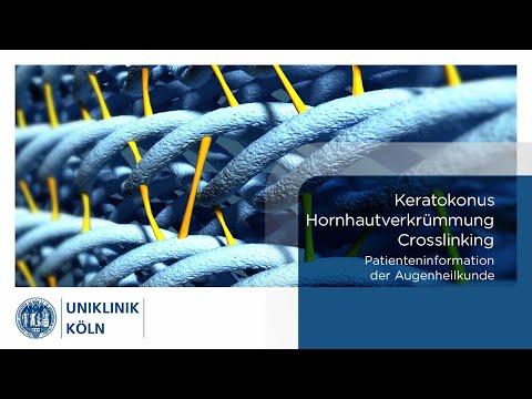 Mit jelent a plusz vagy mínusz látás