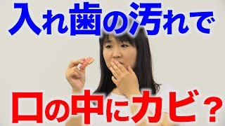 入れ歯の汚れがガンジダ症を引き起こす!?