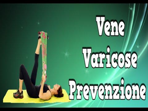 Varicosity trattamento fisso da medicine