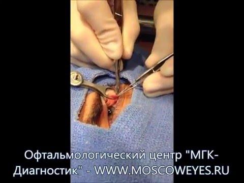 Лазерное удаление морщин вокруг глаз отзывы