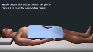 Catheter Insertion For Urinary Retention In Men