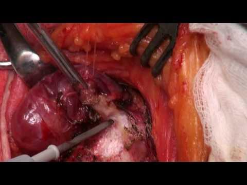 Enterobius vermicularis pictures