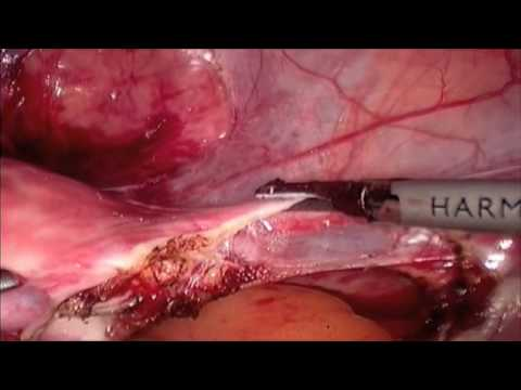 Total Laparoscopic Hysterectomy with Extracorporal Knot Tying