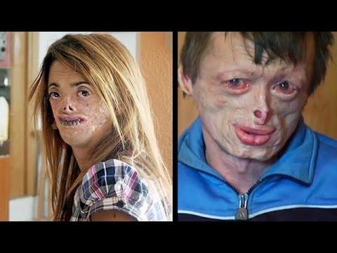 Болезнь сделала из меня мумию (полный выпуск) | Говорить Україна