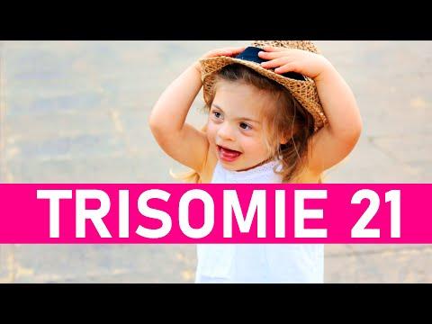Ver vídeoDown-Syndrom: Theresa aus Riedenburg