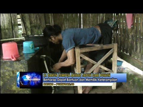 11 Tahun Lumpuh Akibat Jatuh dari Pohon - Ratih TV Kebumen