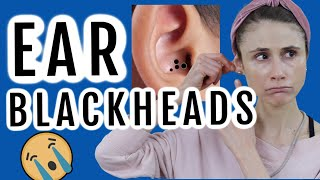 How to get rid of blackheads in the ear| Dr Dray
