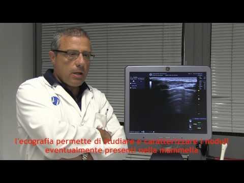 Recensioni conseguenze di chirurgia BPH