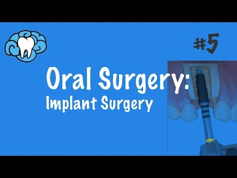 Oral Surgery | Implants | NBDE Part II
