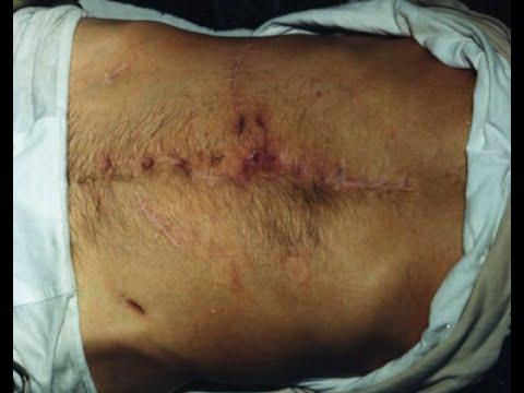 Мутная моча после операции аденомы простаты