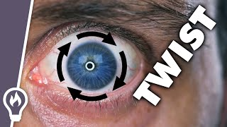 I Can Twist My Eye Around Its Pupil (And So Can You)