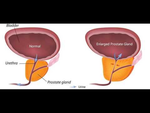 Nierenerkrankung Prostatitis