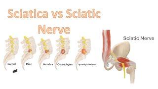 Sciatica vs Sciatic nerve