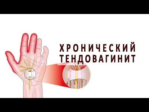 Что нужно знать о хроническом тендовагините