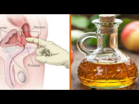 Alcohol burning in the prostate