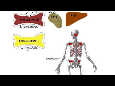 Faiblesse musculaire dans le diabète